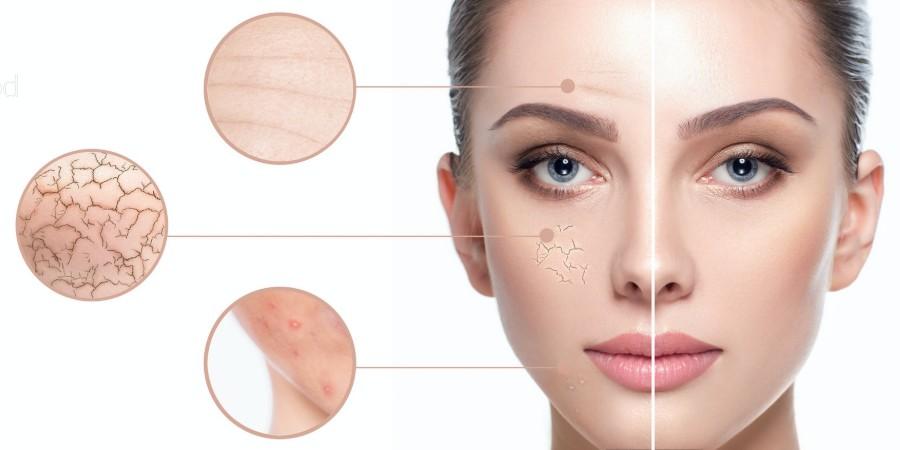 Bőrproblémák kezelése