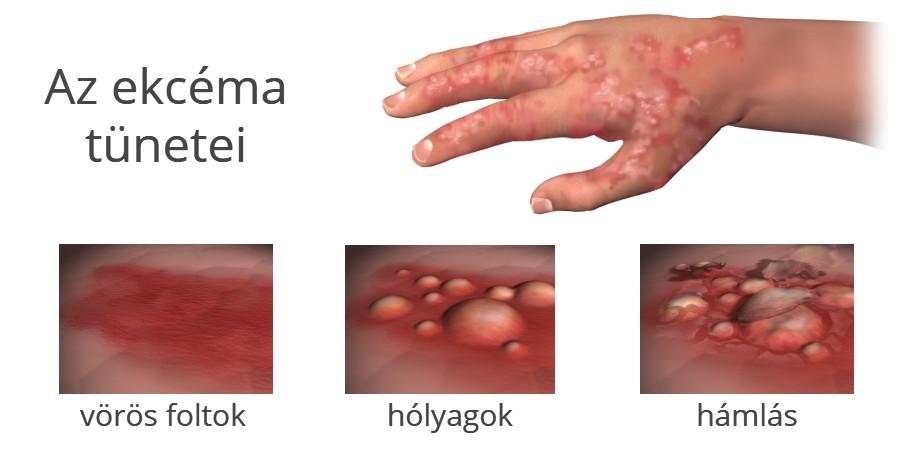 Az ekcéma tünetei