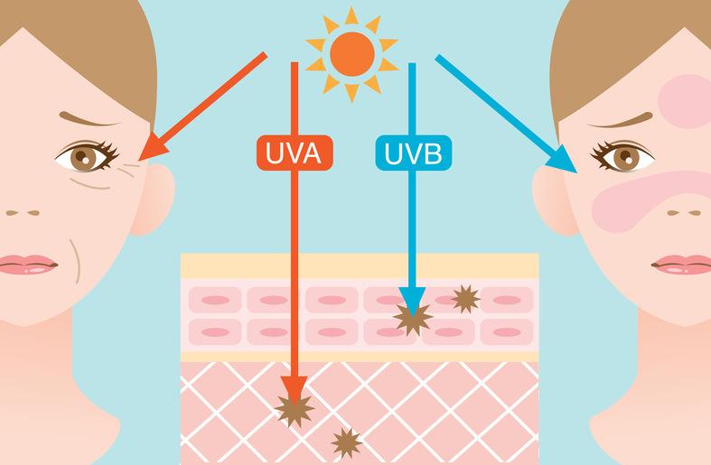 UVA és UVB sugár közti különbség